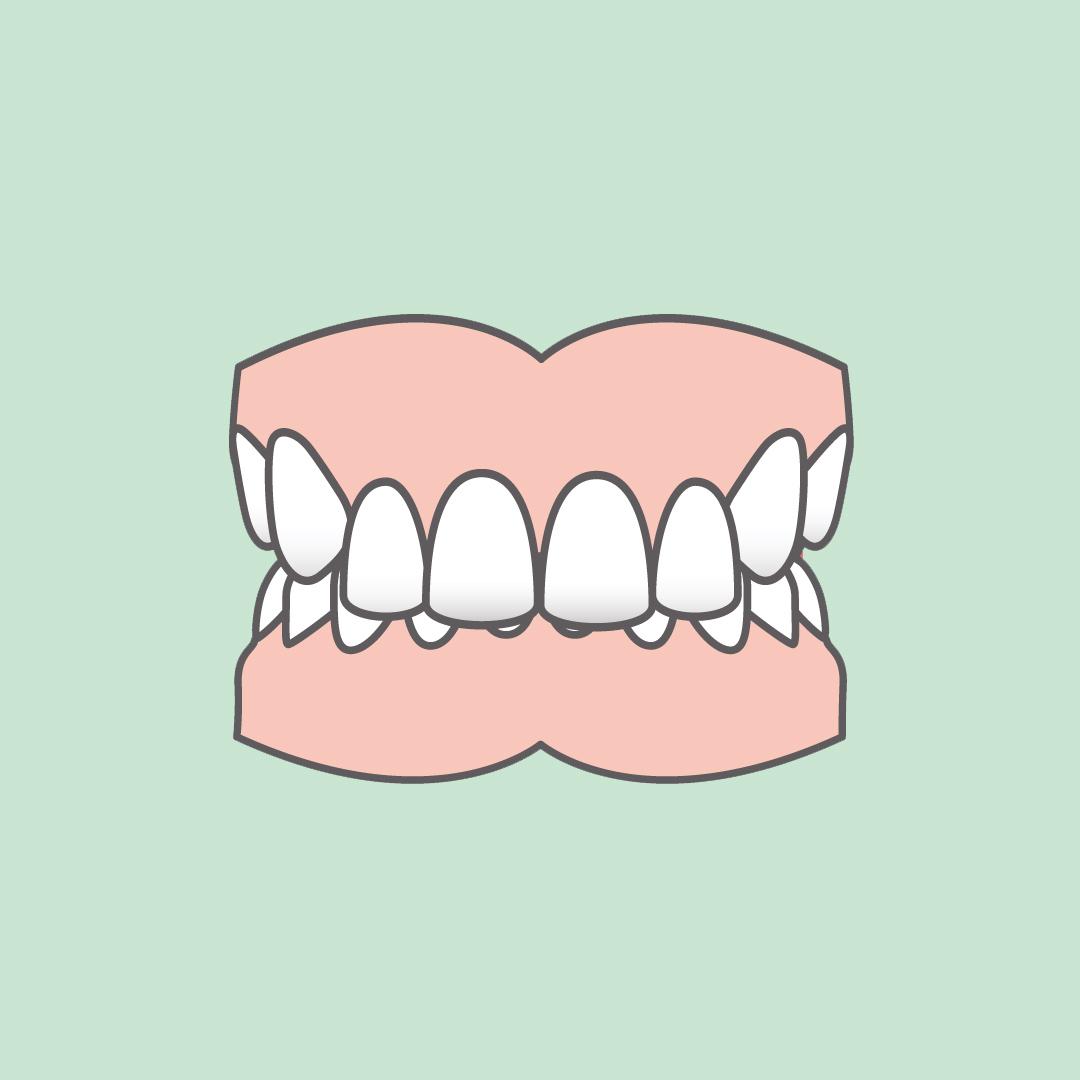 Odontia Tannlegene Dyptbitt