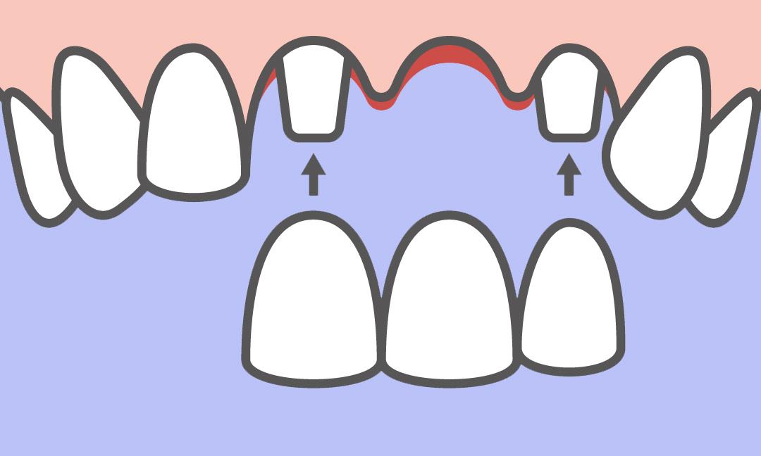 Odontia Tannlegene tilbyr tannbehandling med tannbro dersom du mangler en eller flere tenner
