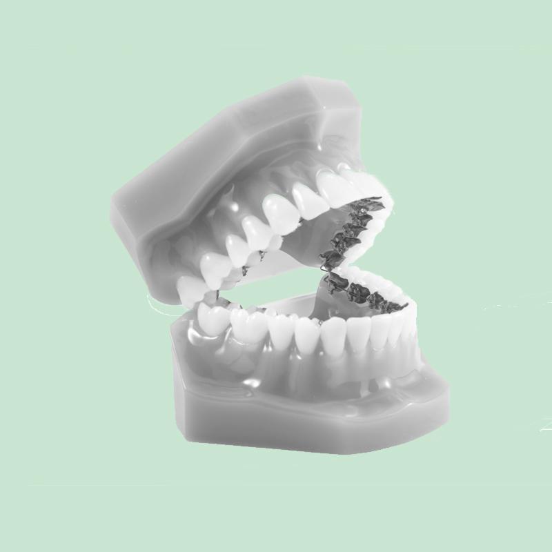 Odontiatannlegene Incognito Tannregulering