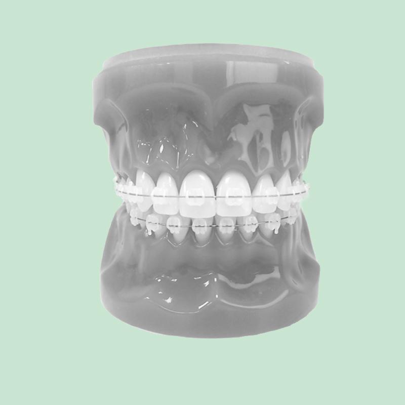 Odontiatannlegene Keramisk Tannregulering