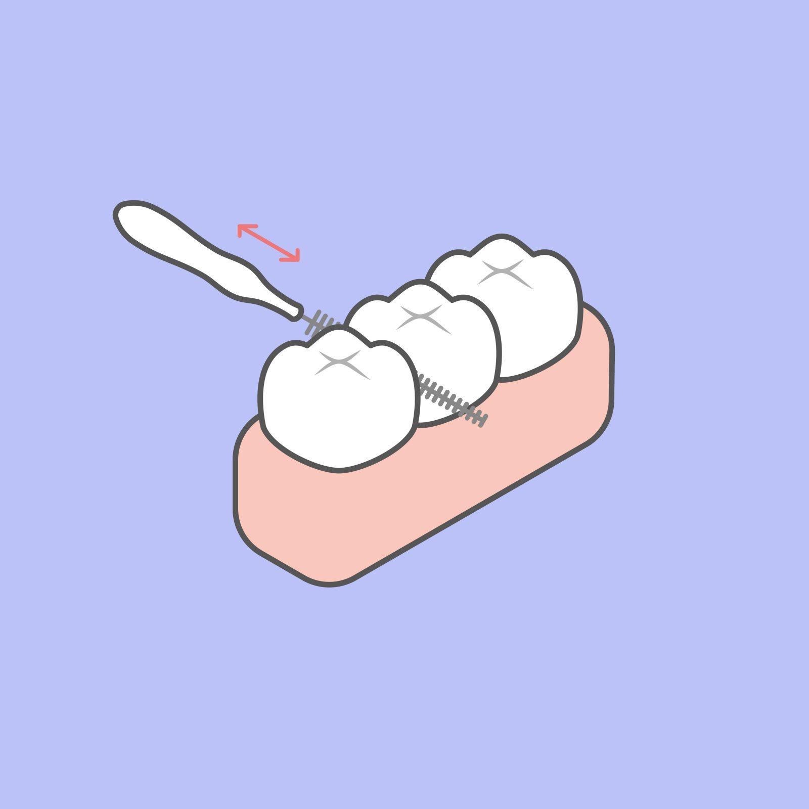 odontia_tannlegene_mellombørste