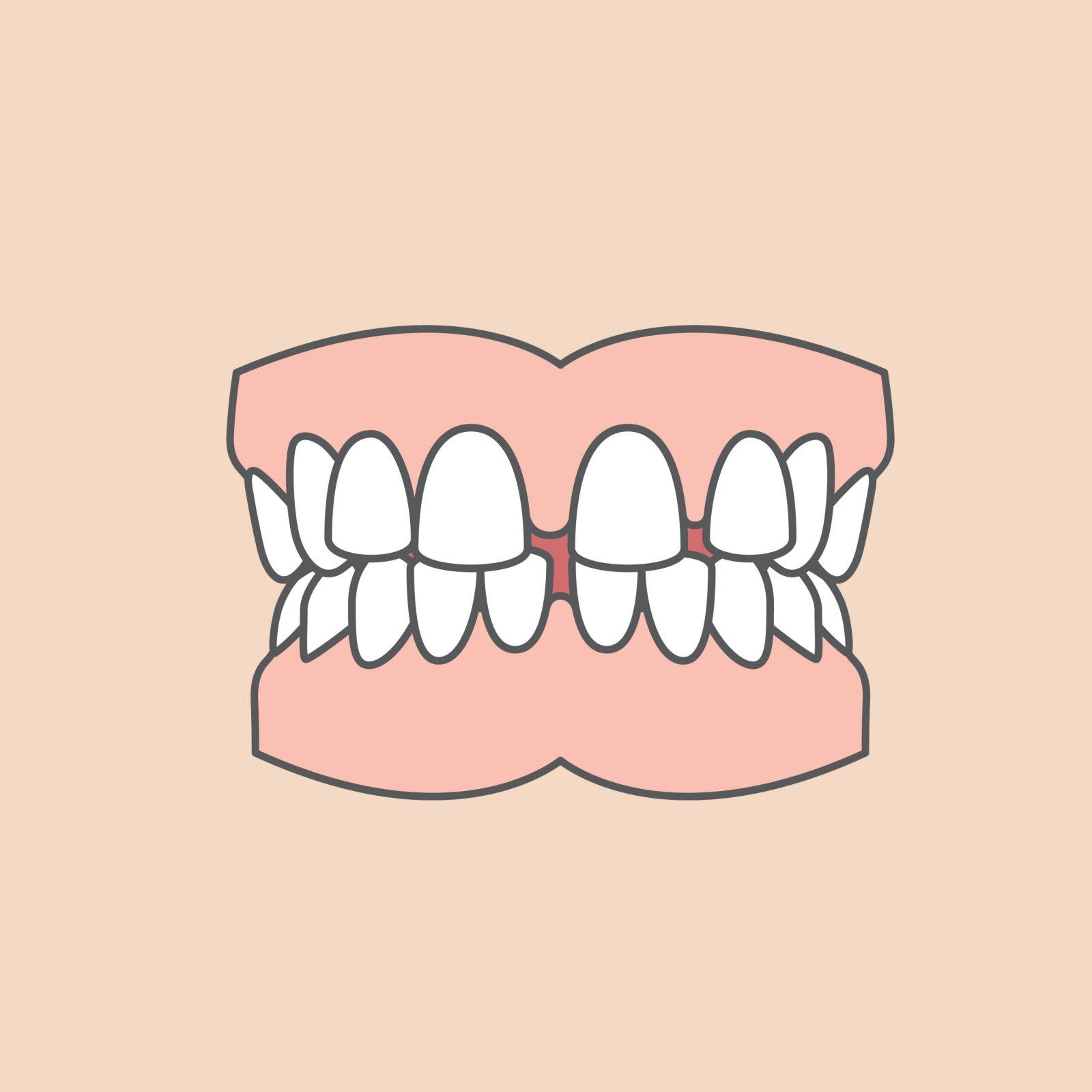 odontiatannlegene_tannstillingsfeil_agenesi
