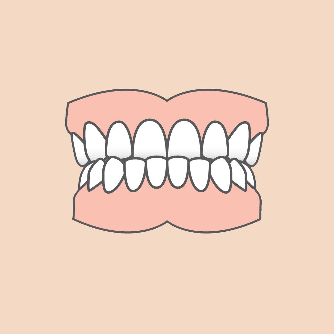 OdontiaTannlegene Tannstillingsfeil Underbitt