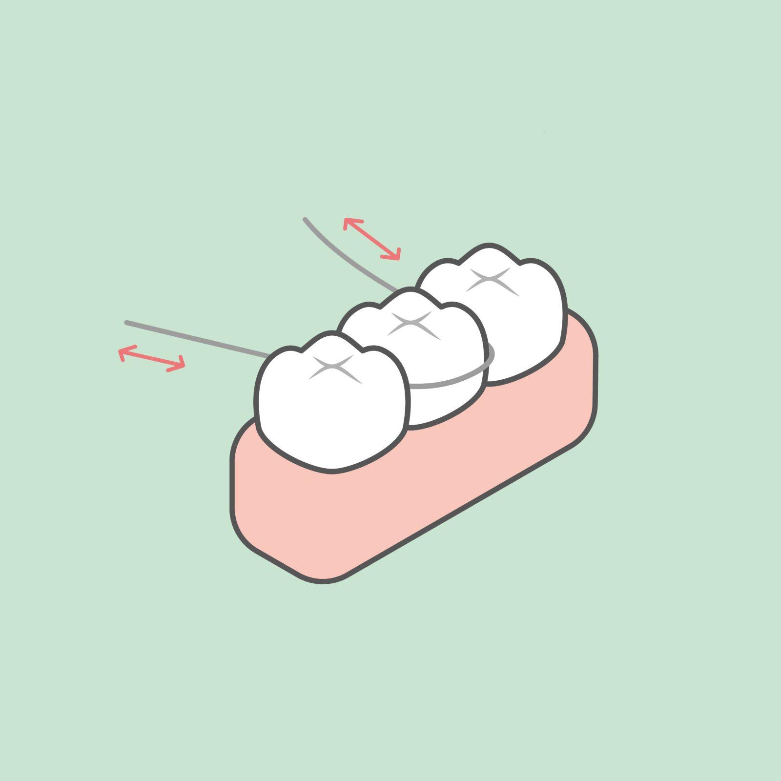 odontia_tannlegene_tanntråd