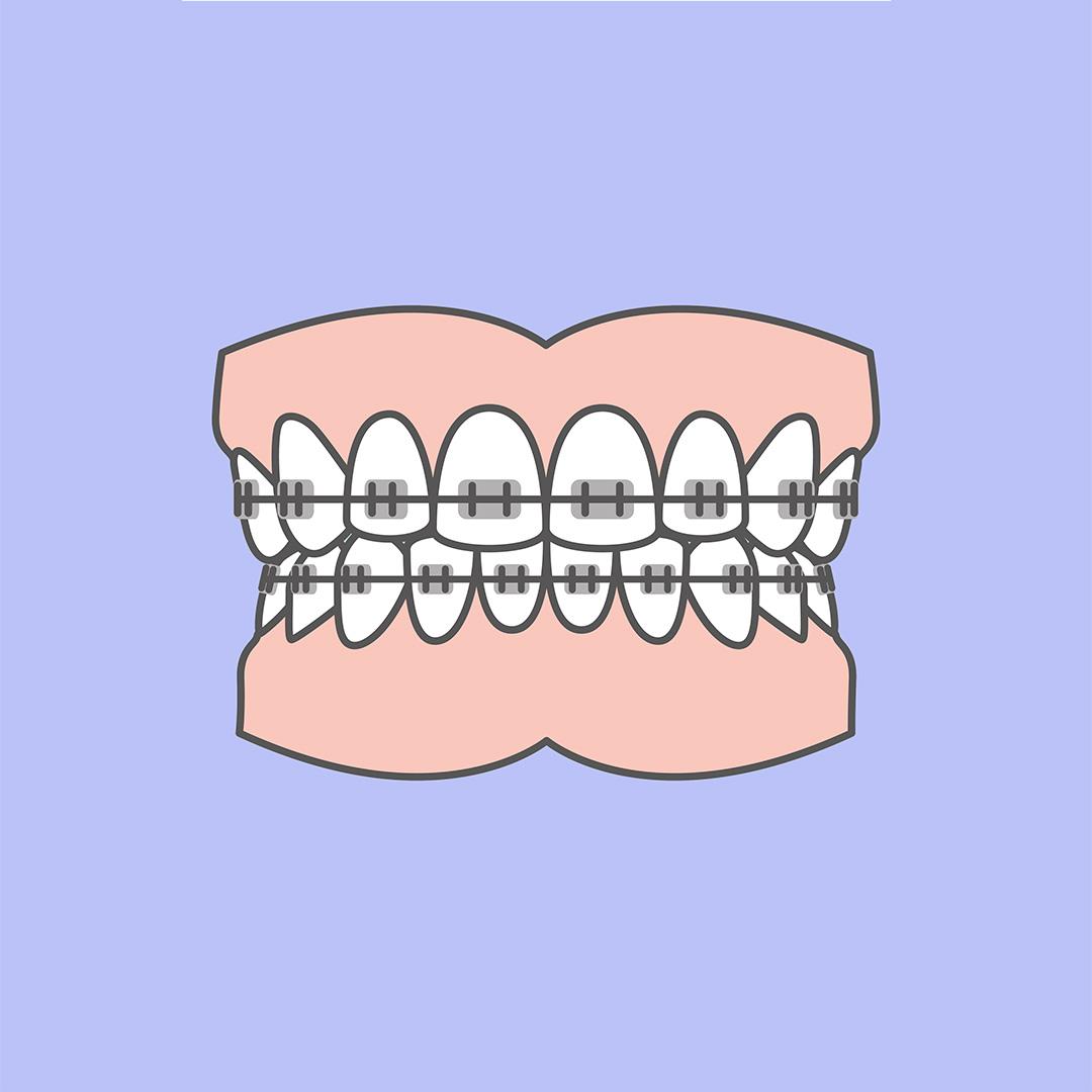 Odontiatannlegene Tradisjonell Tannregulering